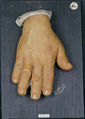 Moulage, Akromegalie bei Syphilis (Hand) [Henning]